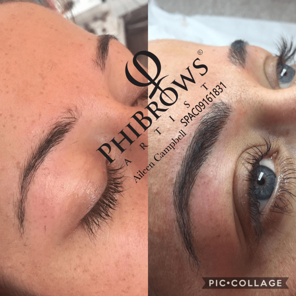 Our Top Brow Specialists To Visit In Ireland This Month Goss